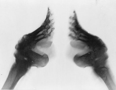 X-ray of a bound foot China